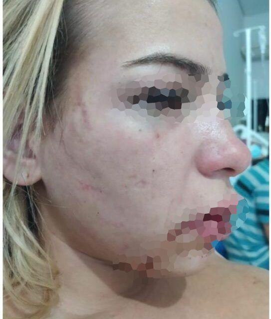 Mulher que sofreu agressão teve fraturas no rosto vai precisar passar por uma cirurgia (Foto: Arquivo pessoal)